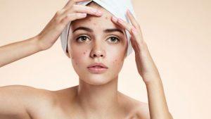 Rutinas del cuidado de la piel con acne