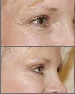 Botox, rejuvenecimiento sin cirugía