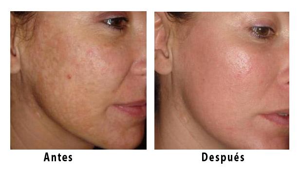 El acné el tratamiento por el láser moskva