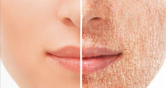 ¿Cómo cuidar nuestra piel según la edad?