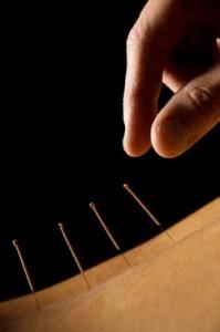 Controla ese dolor a través de la acupuntura