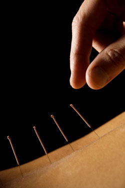 acupuntura alivia dolores