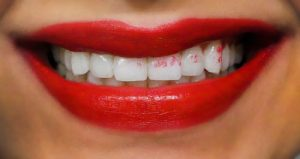 Como evitar que tus dientes se manchen con labial