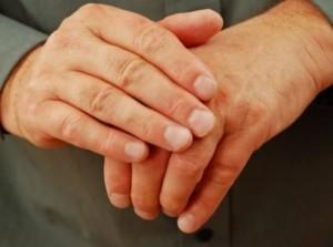 Artritis Reumatoide: Un Inesperado y Doloroso Mal