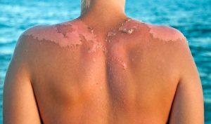 ¿Cómo tratar las quemaduras de sol?