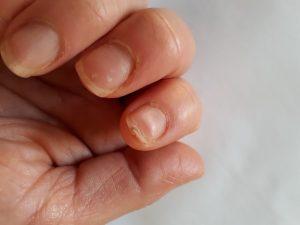 Condiciones de salud que pueden causar uñas quebradizas